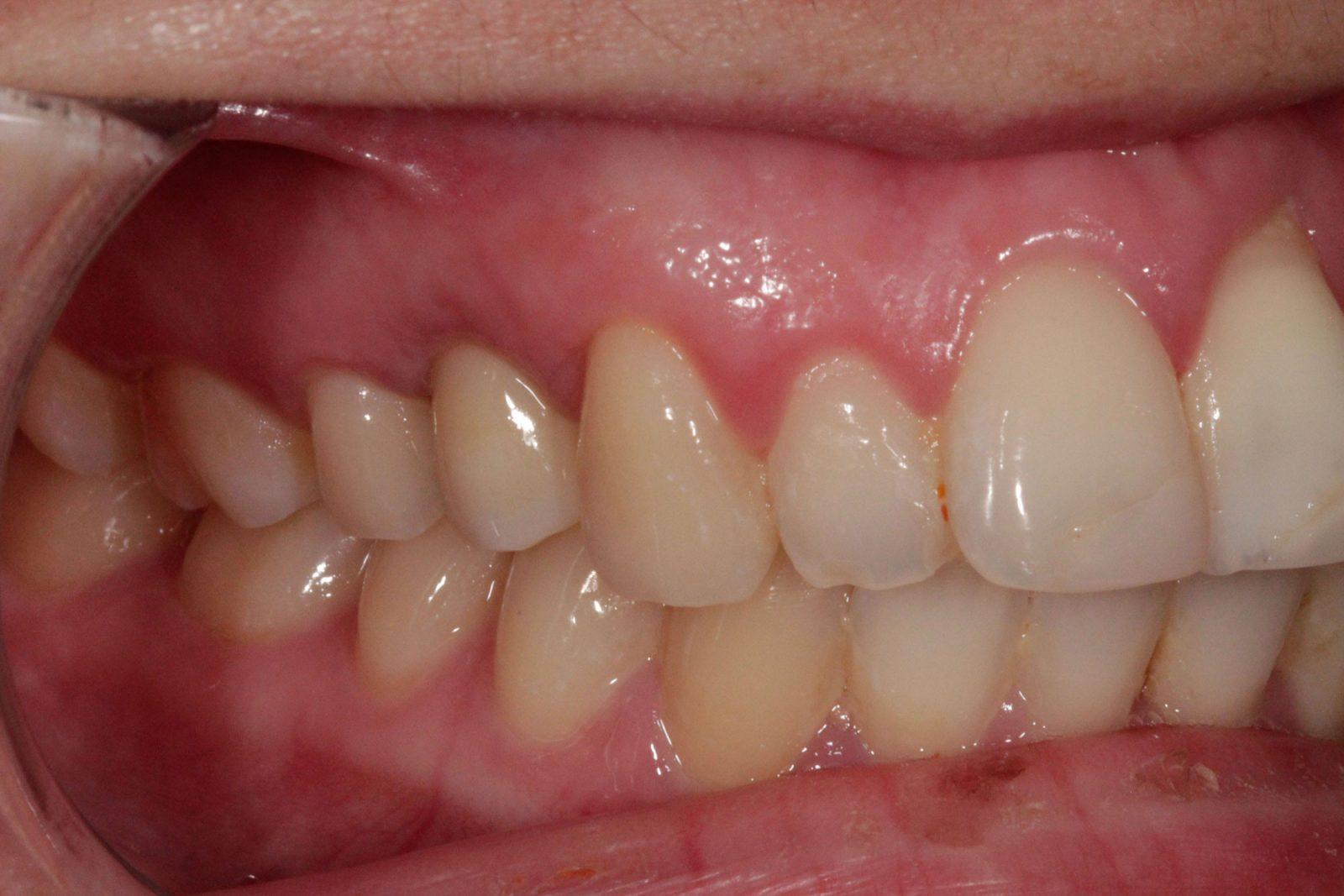 implant testimonial
