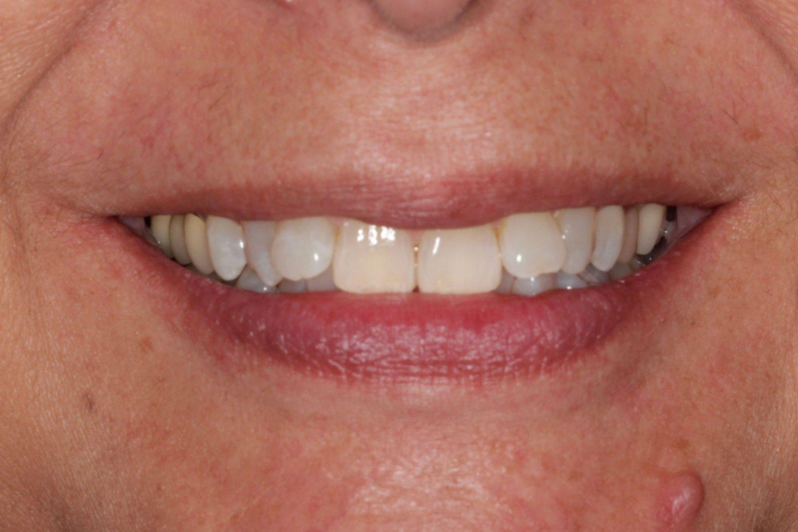 Invisalign Orthodontics treatment