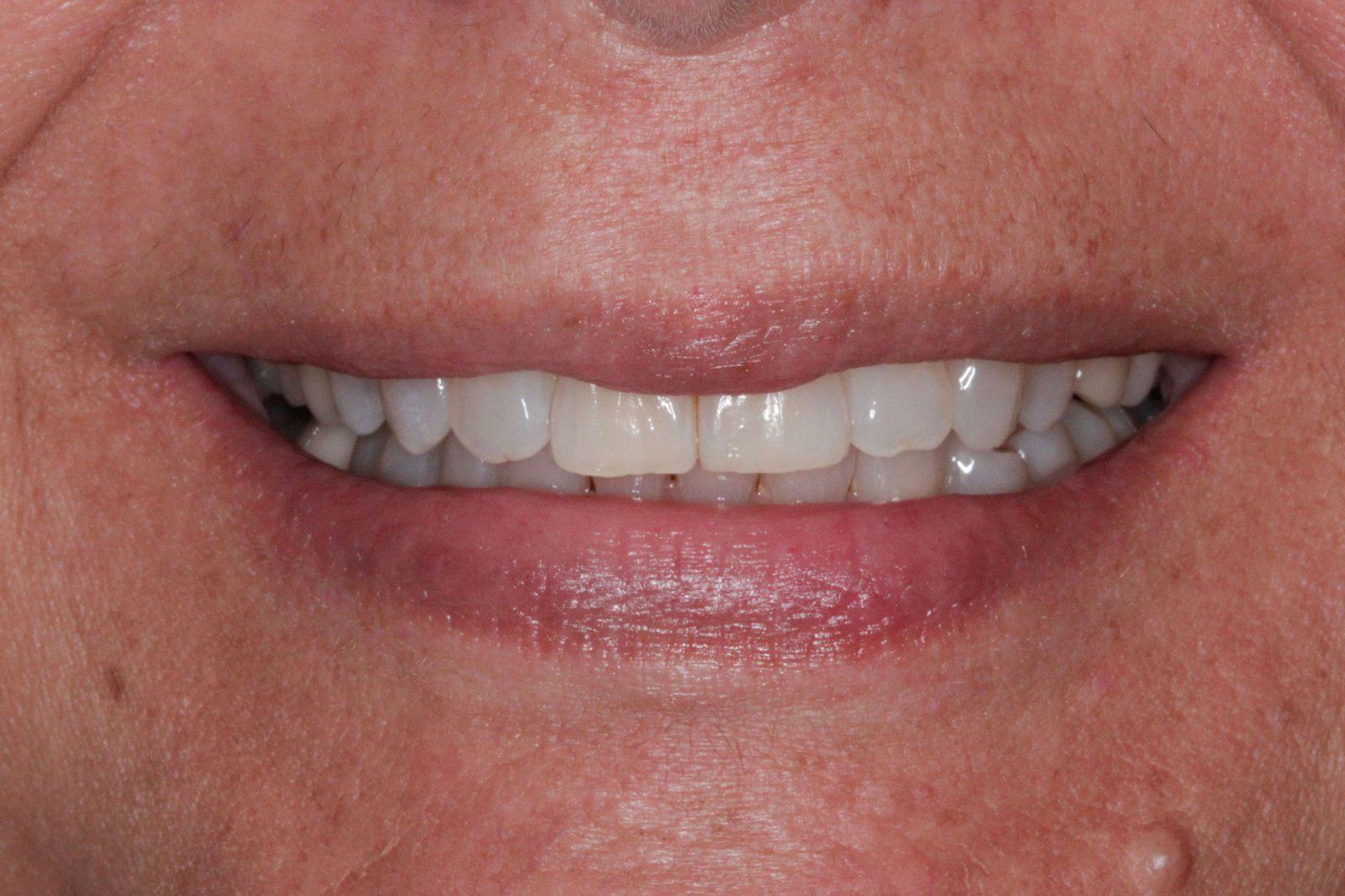 Invisalign Orthodontics testimonial