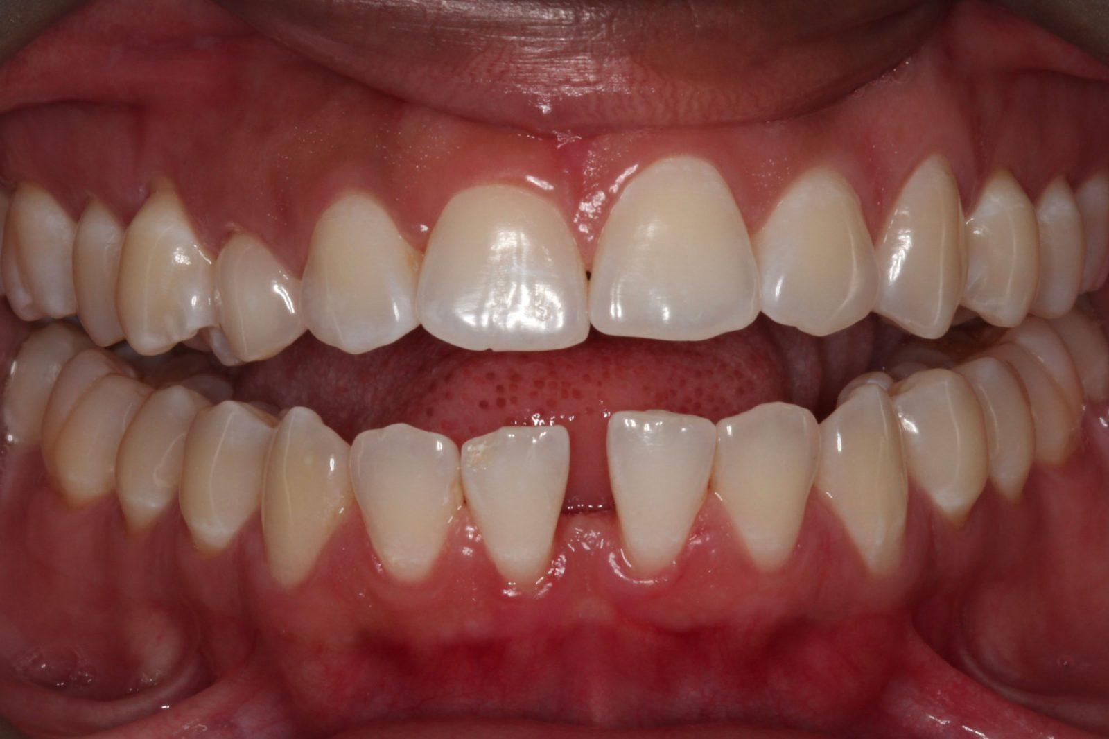 Invisalign® Orthodontics