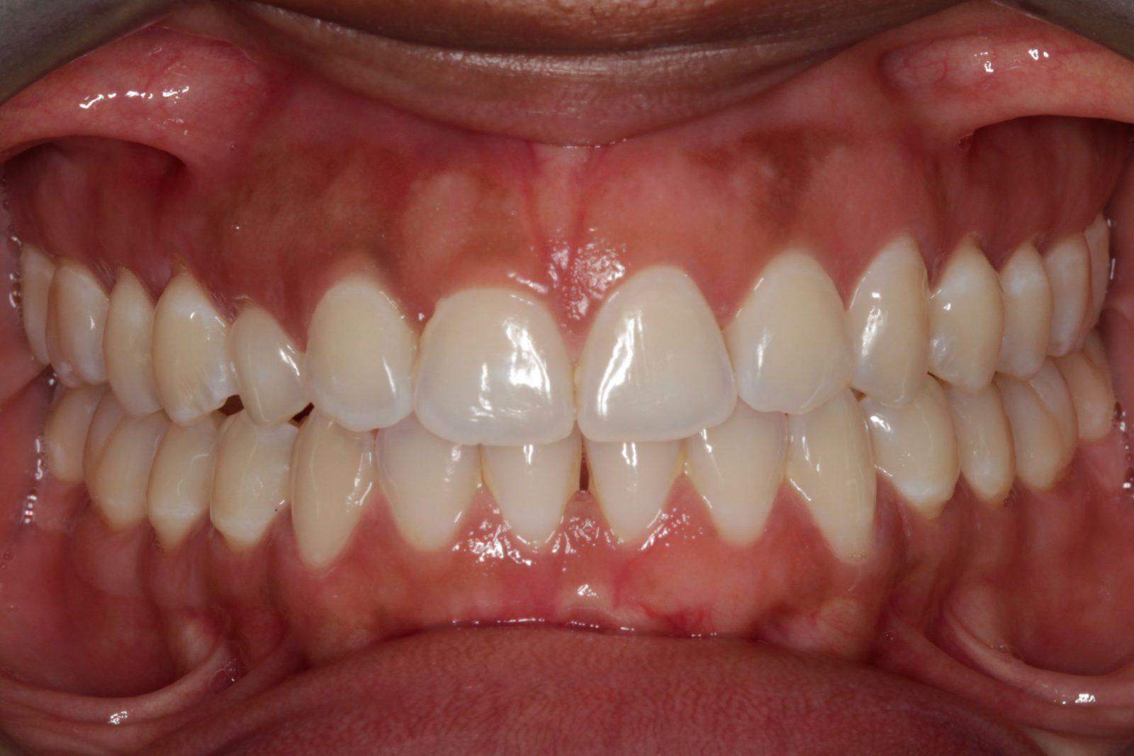Invisalign dentist Dallas