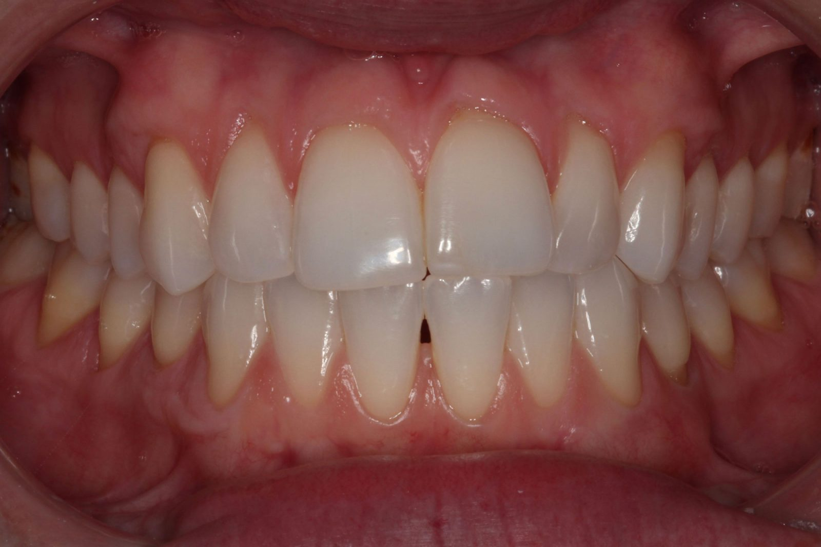 Invisalign Orthodontics Dallas, TX
