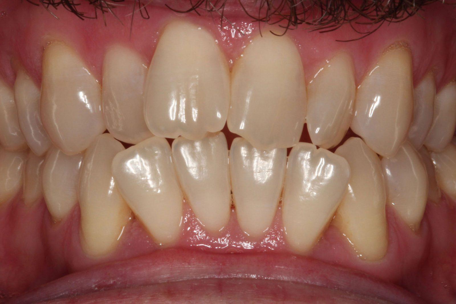 Invisalign Orthodontics Dallas