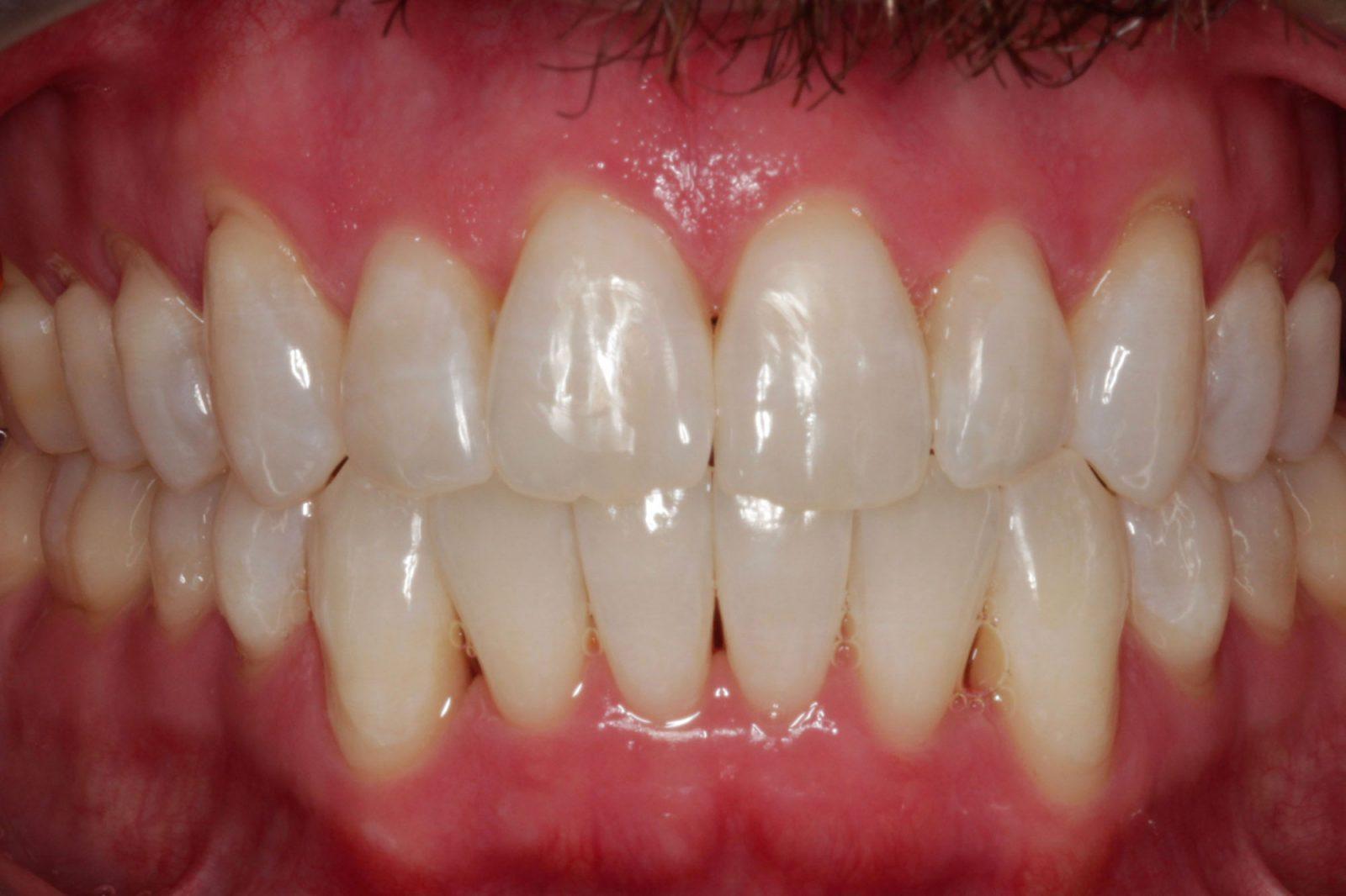 Invisalign® Orthodontics Dallas
