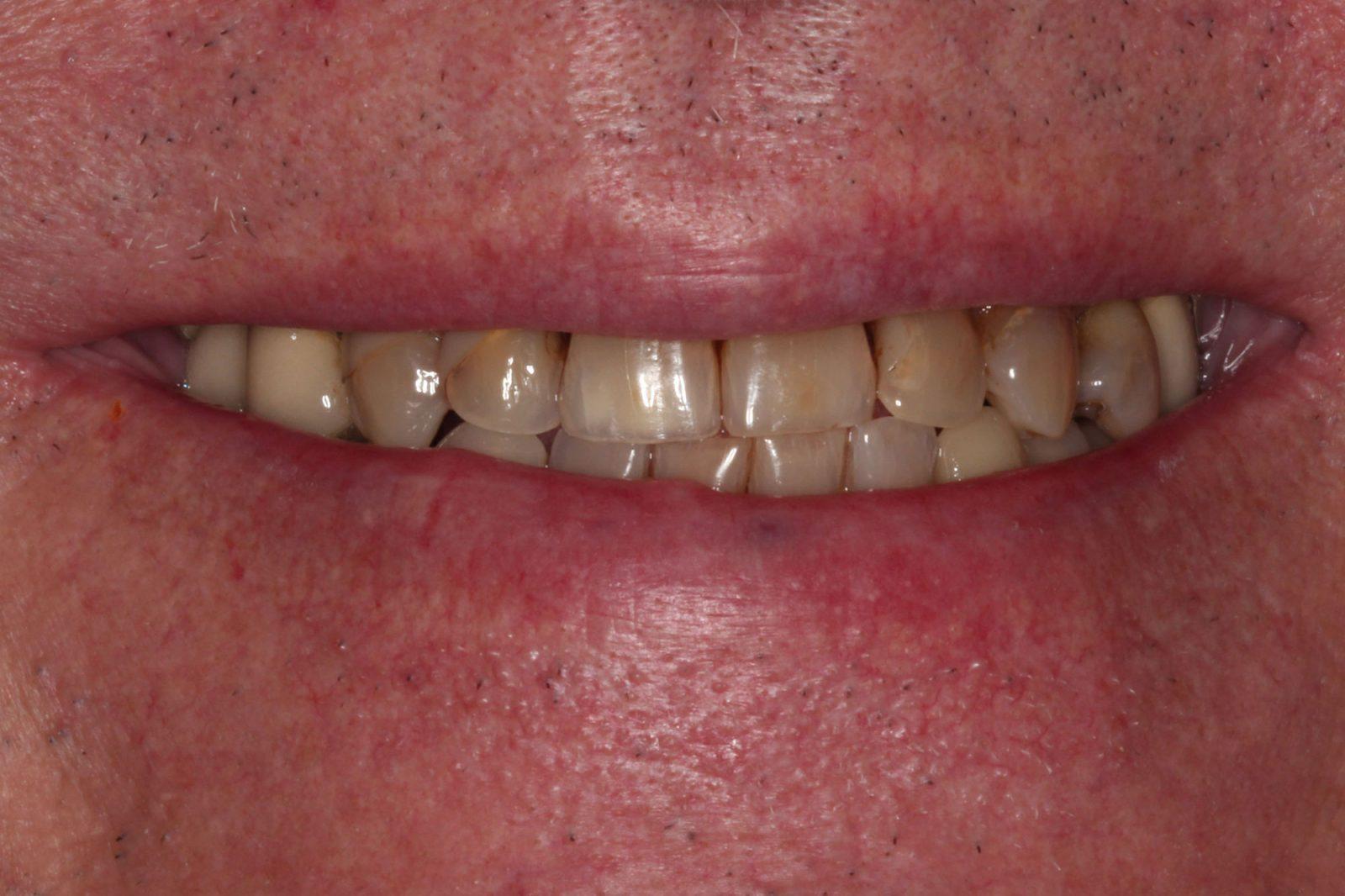 Porcelain Dental Crowns testimonial