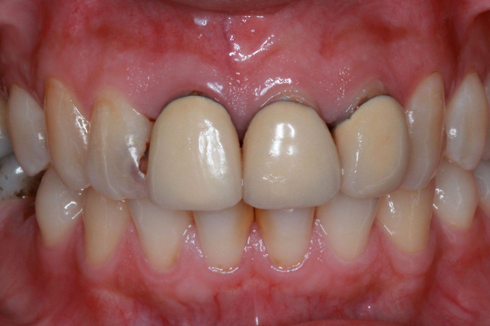 Porcelain Dental Veneer Crowns Dallas TX
